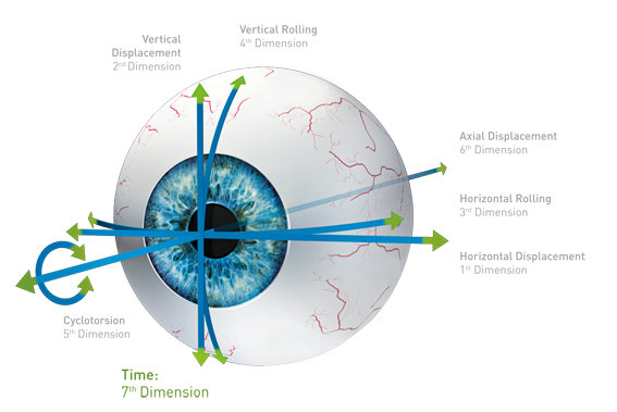 Eyeball with acquisition opportunities in up to 7 dimensions in english