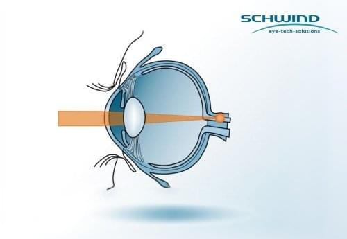 Visual defects and correction - Schwind